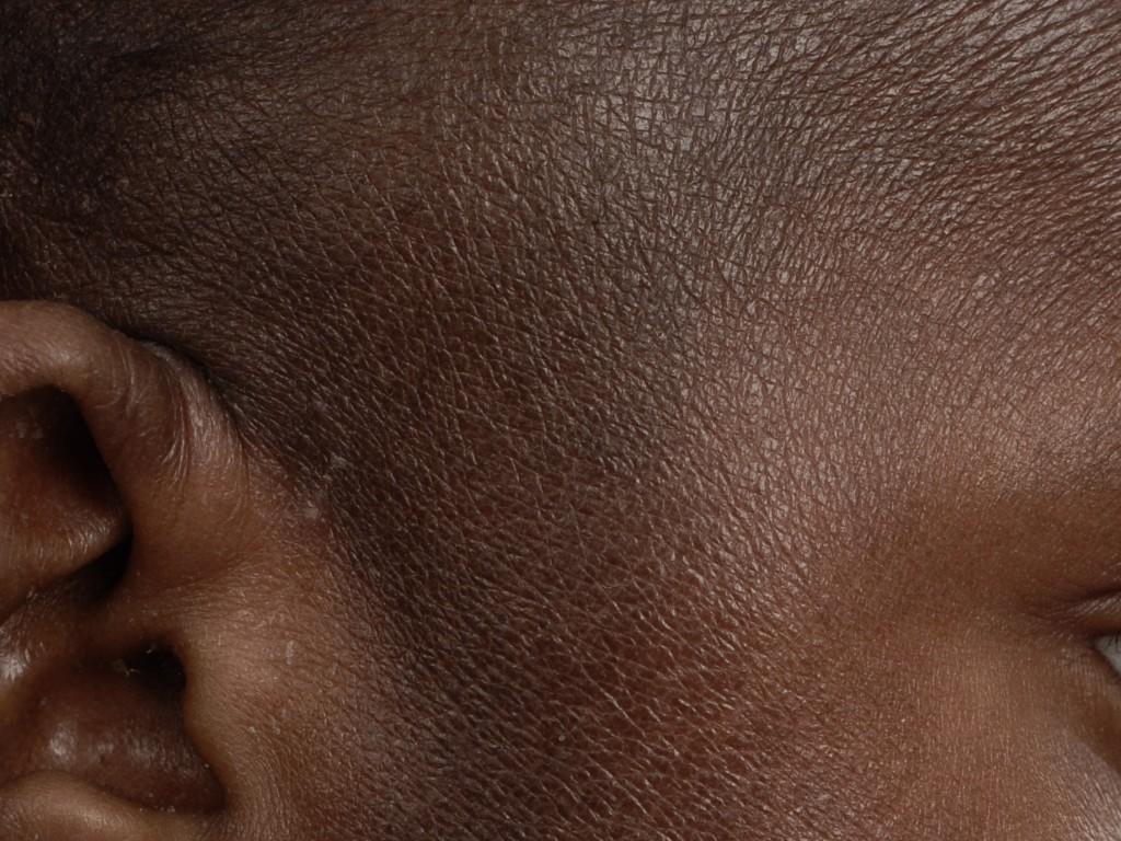 wat is atopische huid