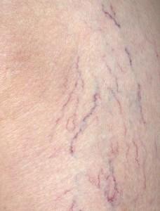 varices symptomen