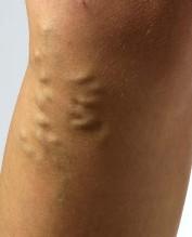 spataderen binnen in been