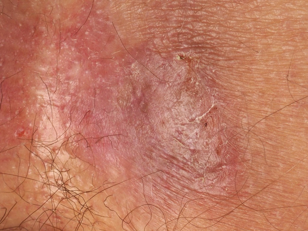 Herpes Pictures – Herpes Pictures and Cold Sores Pictures