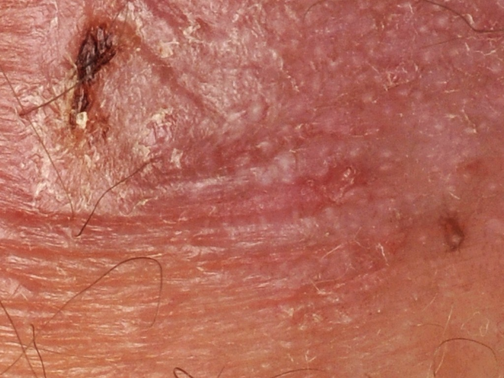 How To Cure Genital Warts Naturally