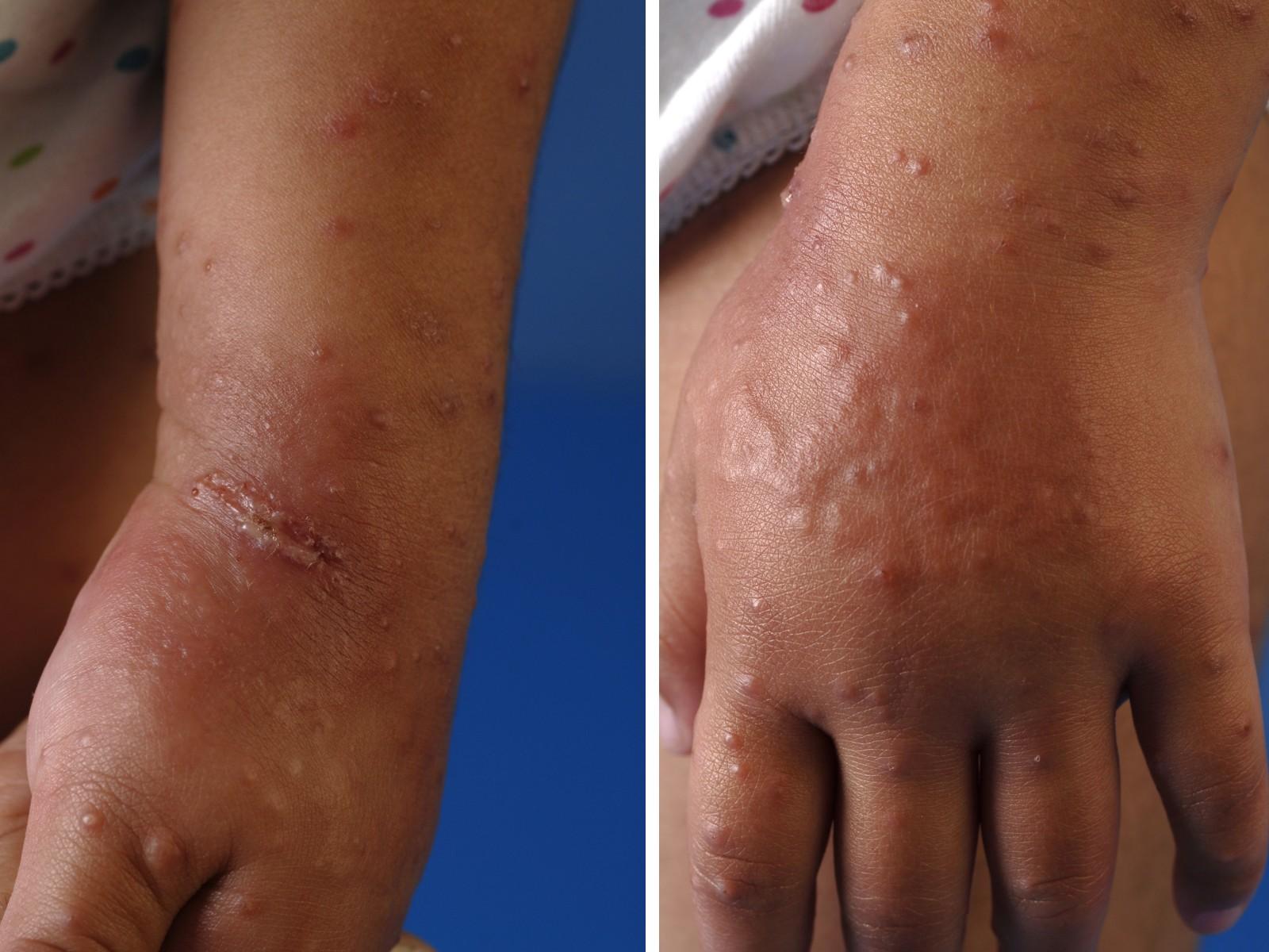 Acrodermatitis chronica atrophicans  Wikipedia