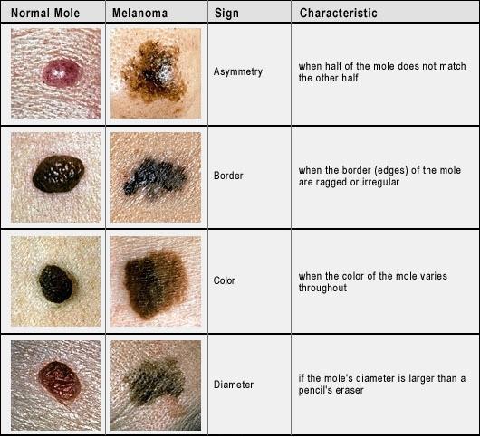 kwaadaardig melanoom herkennen