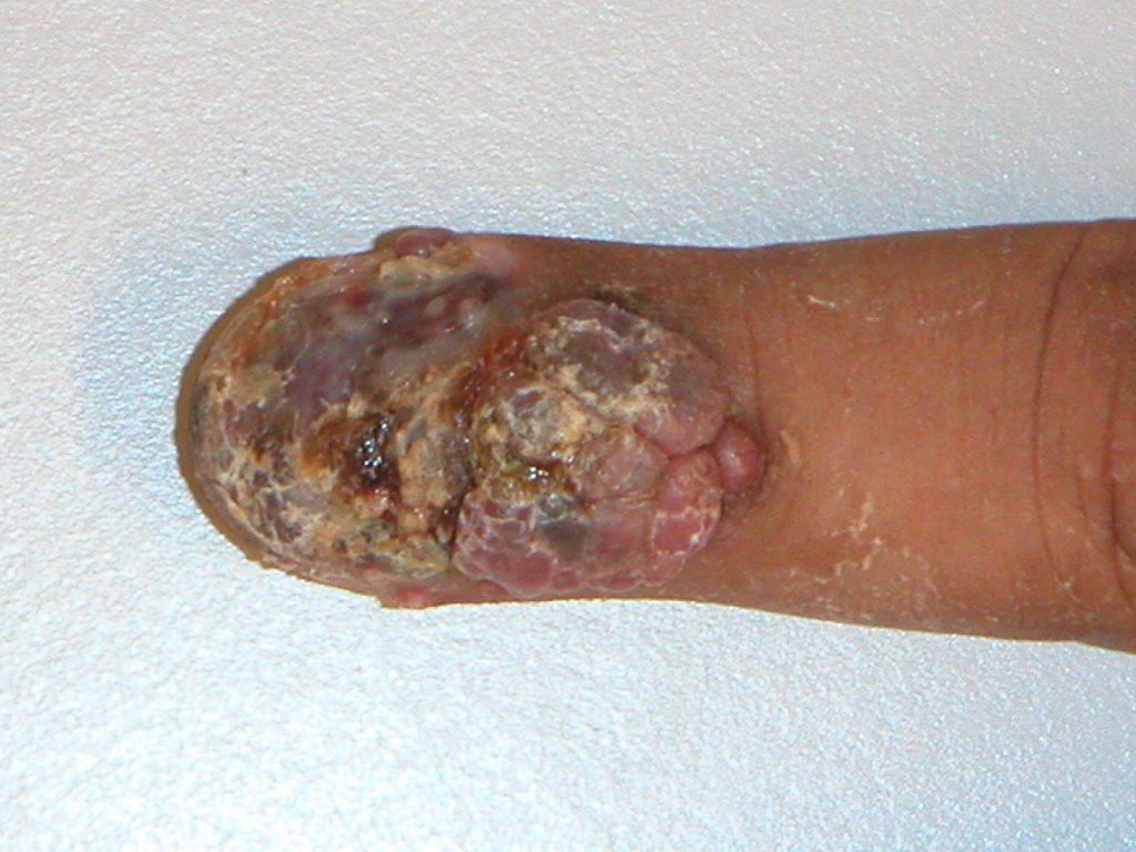 amelanotisch melanoom prognose