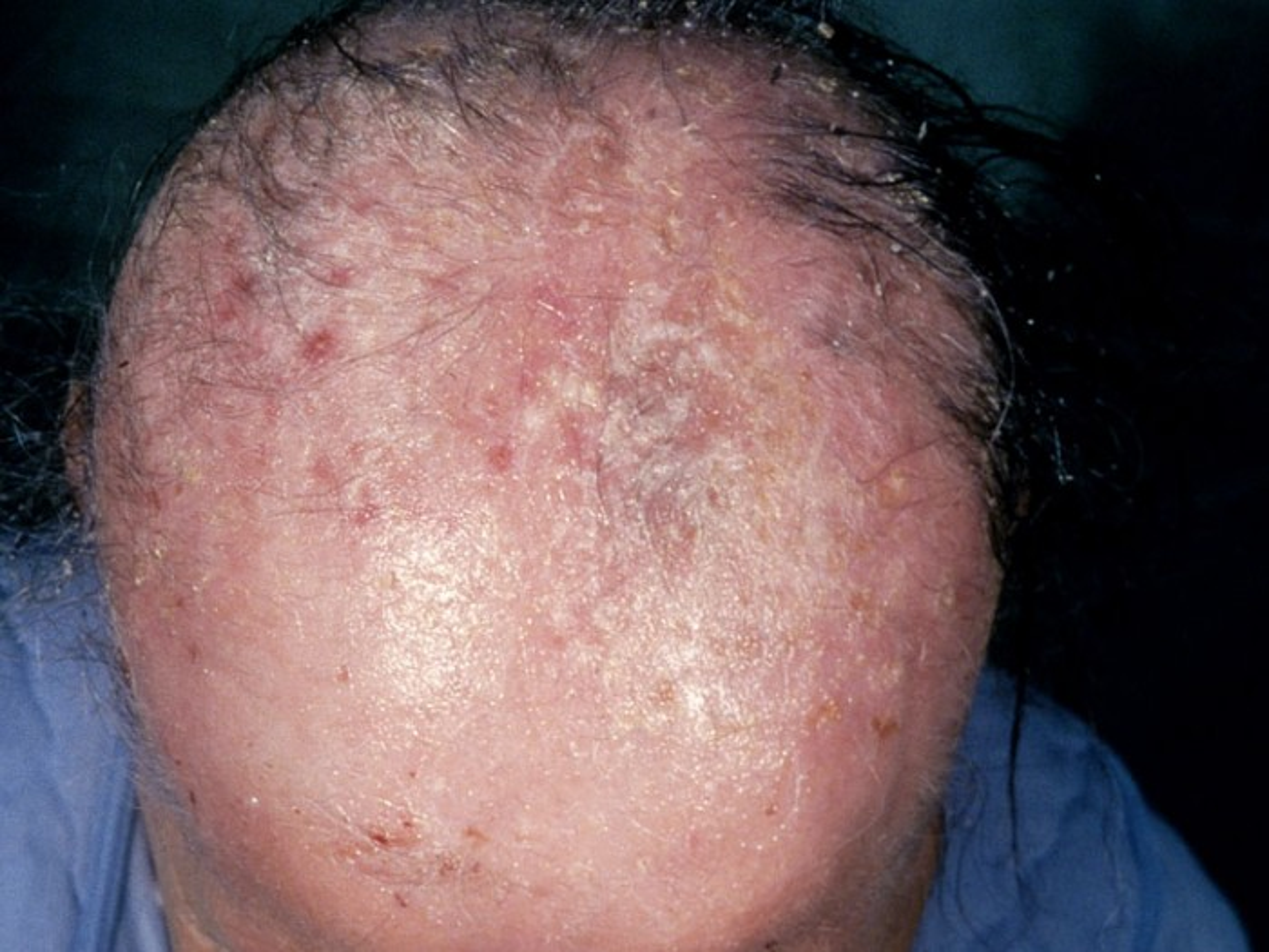 schimmelinfectie komt steeds terug