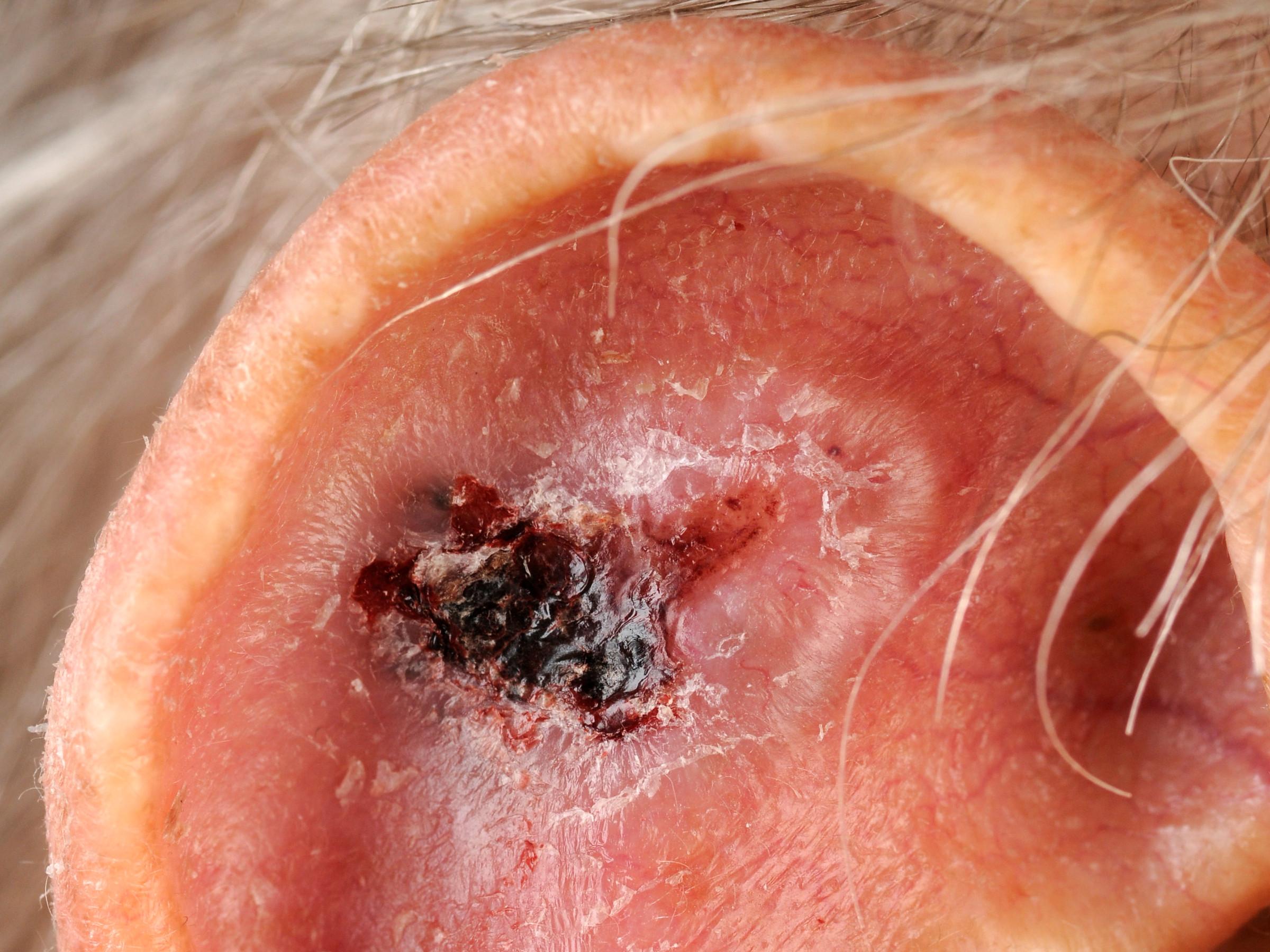 Hoe kunt u ringworm of Katrienewiel krijgen  gezondheidbe