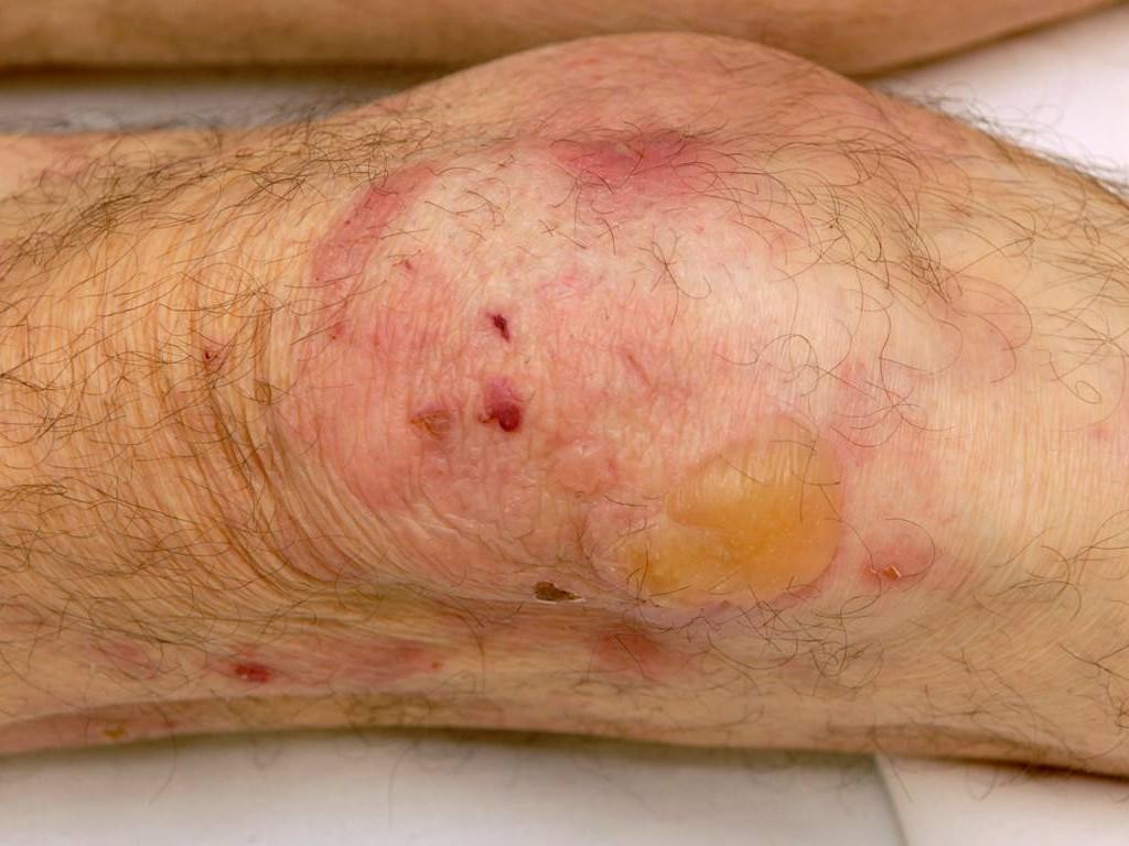 oudere huid behandelen