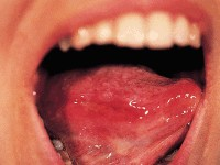 Chronic ulcerative stomatitis