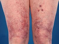 Cutaneous collagenous vasculopathy