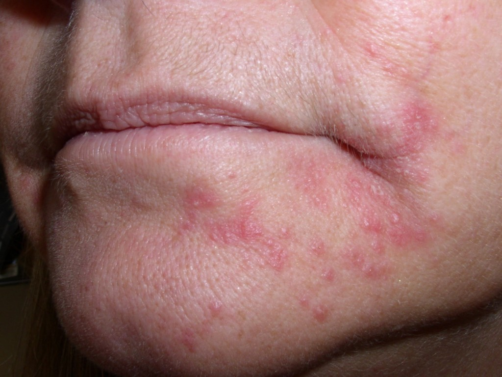 Theme Facial rashes on adults join. And
