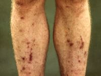 Pretibial pigmented patches