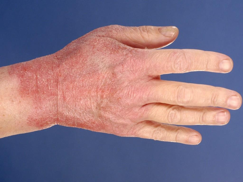 Afbeeldingsresultaat voor Allergisch contact eczeem