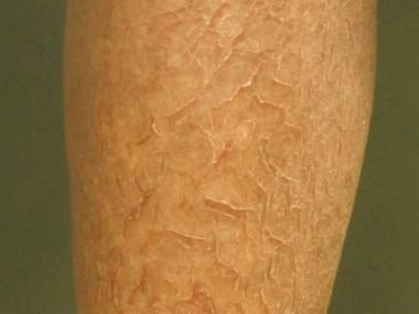 Droge Huid Zalven En Cremes Voor De Droge Huid Patientenfolder