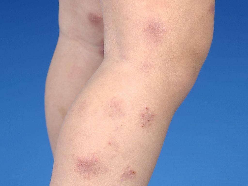 schilferend plekje op huid