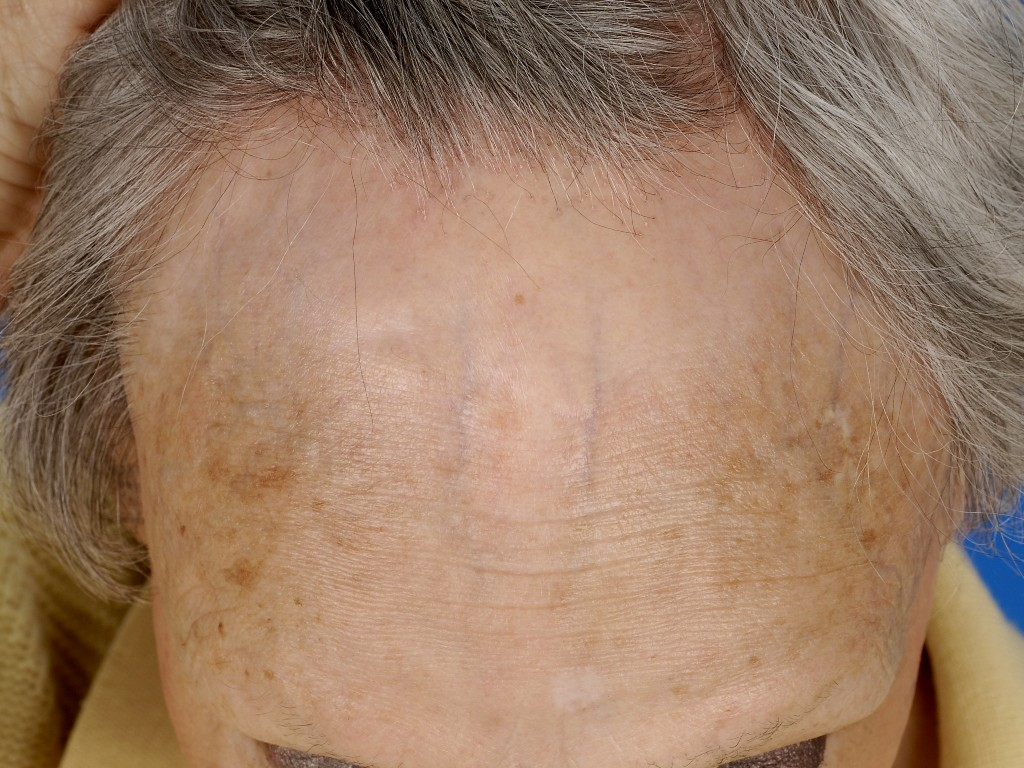 frontale fibroserende alopecia