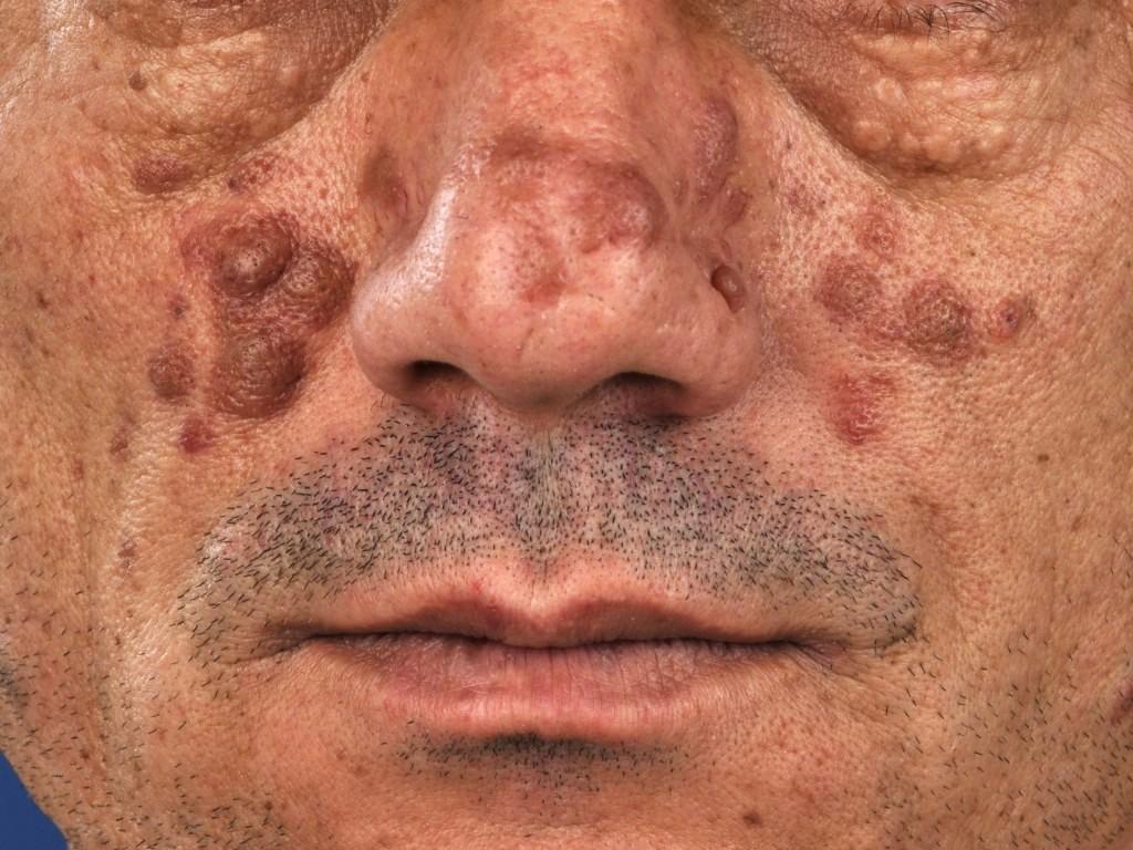 Micoze faciale