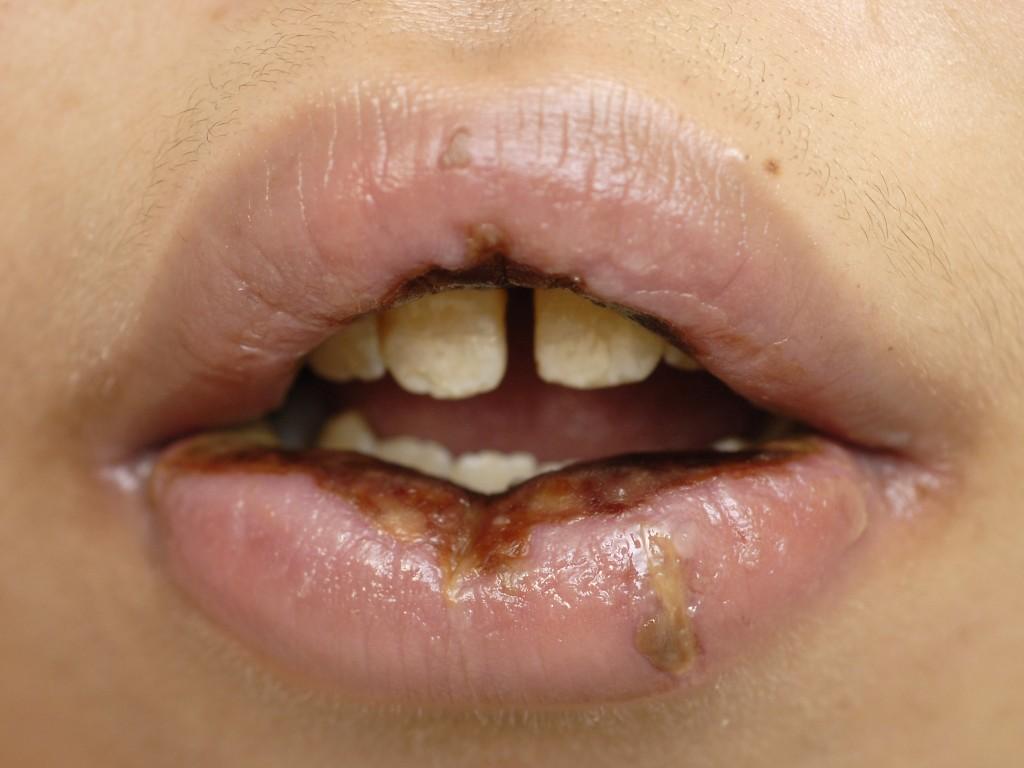 губы изнутри в картинках марса