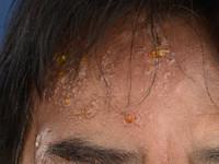 Der scheide herpes zoster in Herpes genitalis: