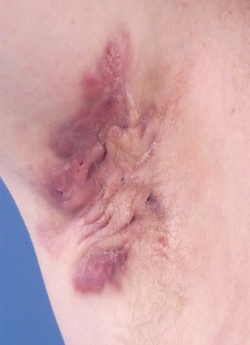 ontstekingen huid