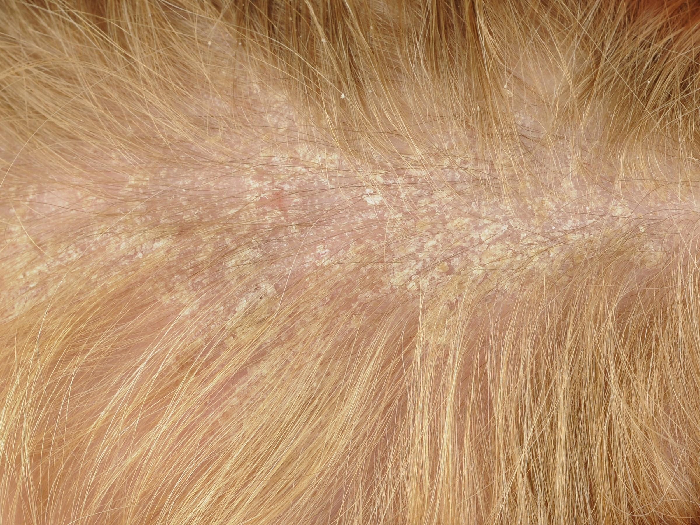 Rezultat slika za perut