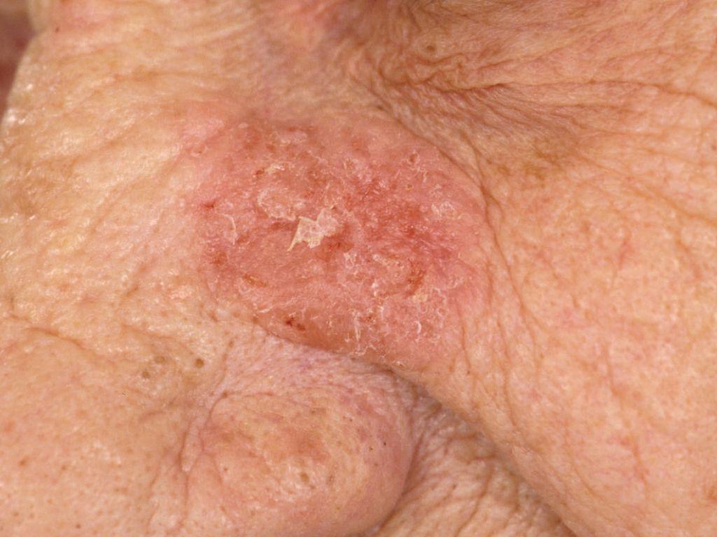 lichtbruine vlekken op de huid