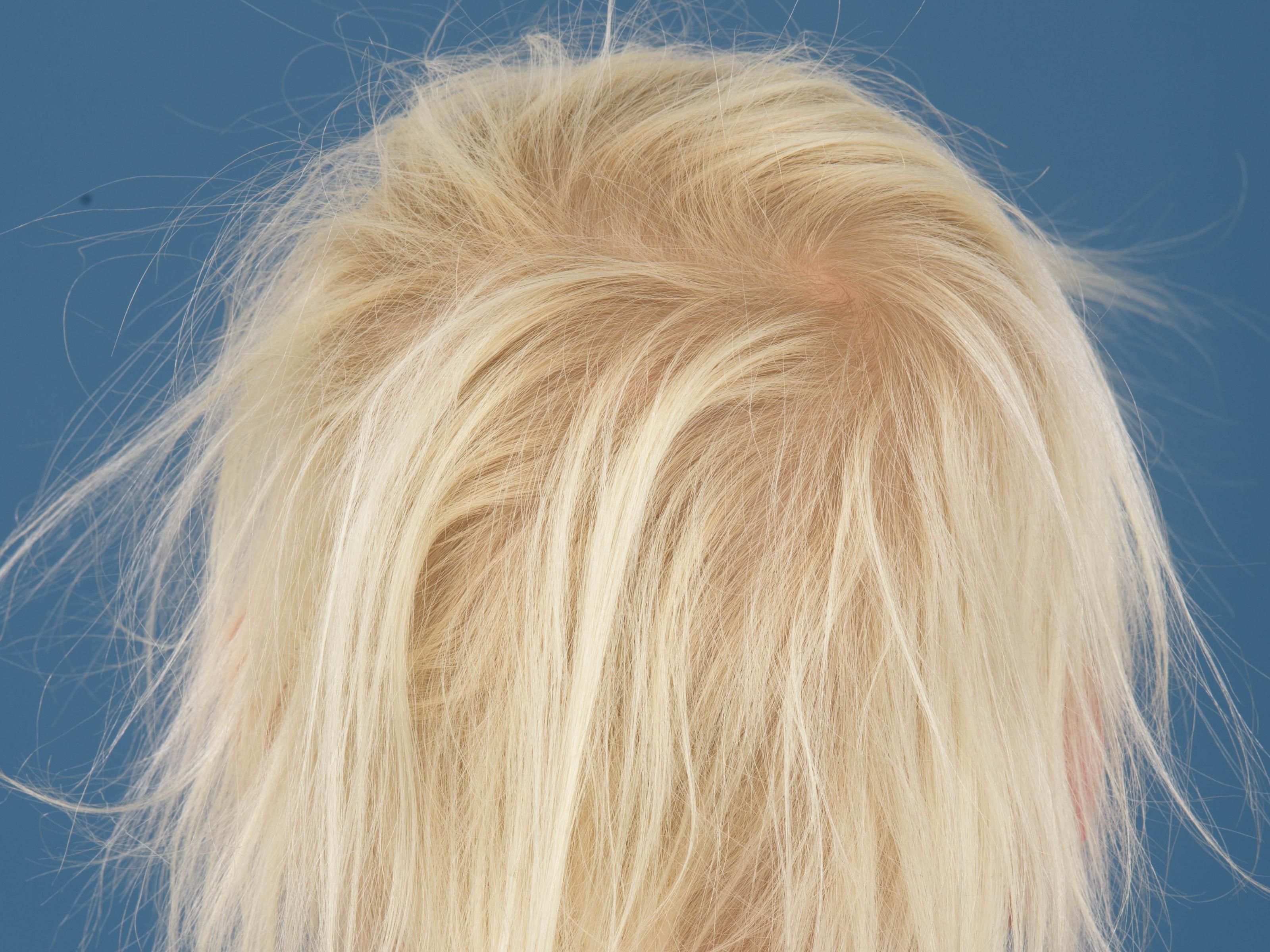 7a5c41e8800 Loose anagen hair syndrome