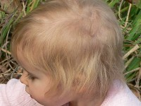 Loose anagen hair syndrome