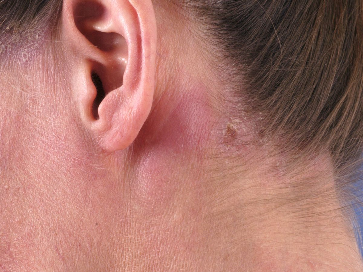 Lymphadenitis Acuta Vergrote Lymfklieren Lymfadenopathie
