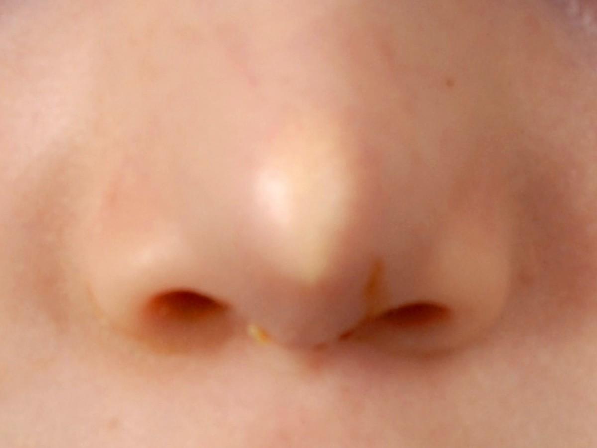 Midline nasal dermoid cyste (congenitale neusfistel)