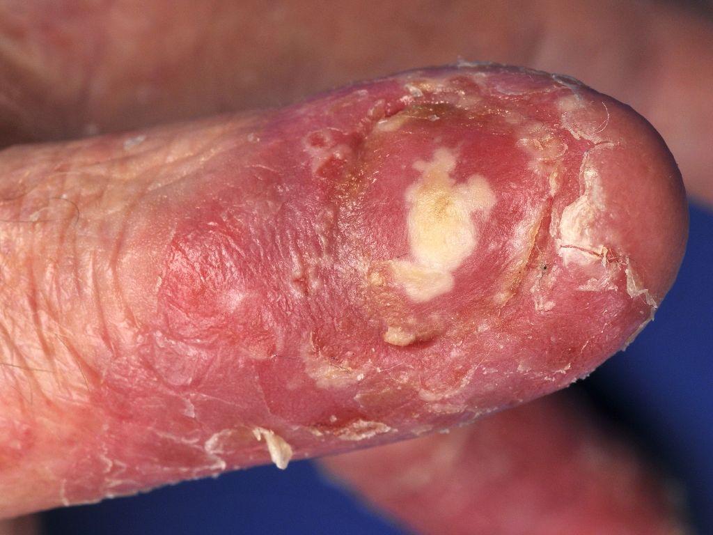 kan psoriasis genezen