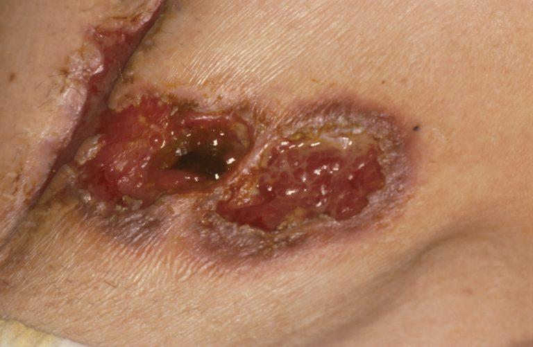ziekte van crohn te genezen