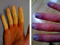 gerimpelde vingertoppen
