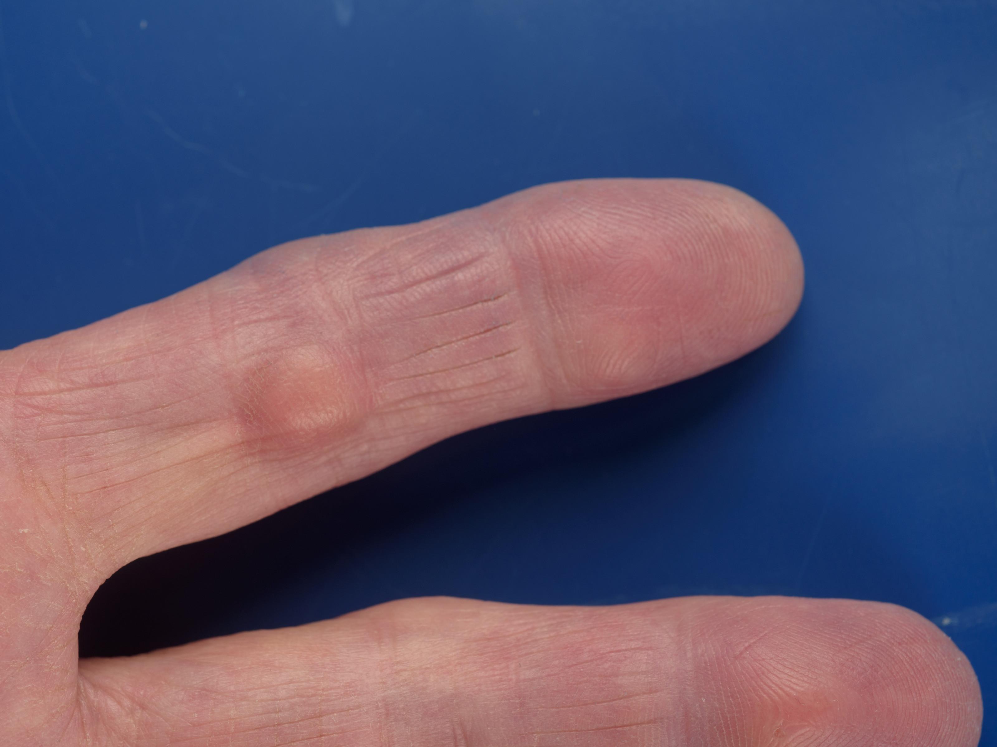Is Het Nu Reuma Artrose Of Artritis Gezond Thuis