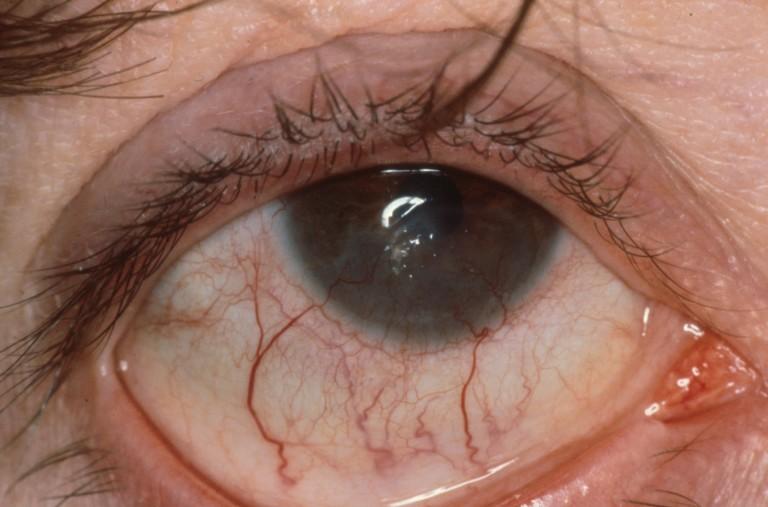 vocht oogleden