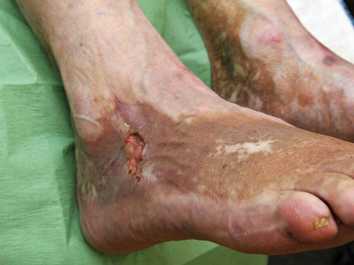 arteriële ulcus cruris