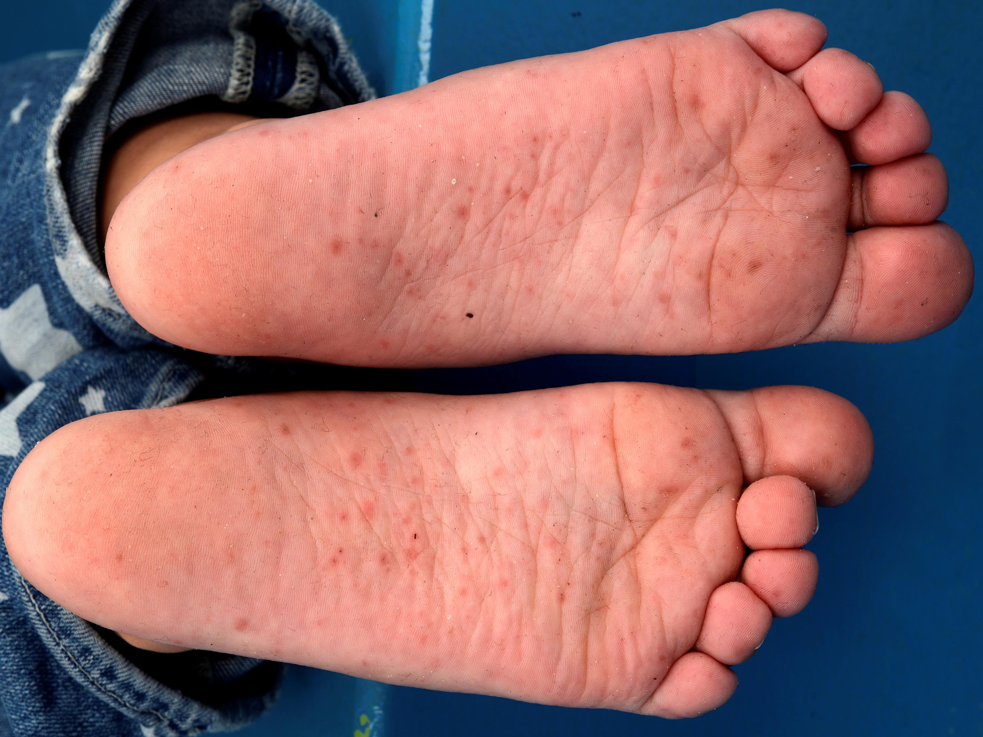 streptococcen infectie huid