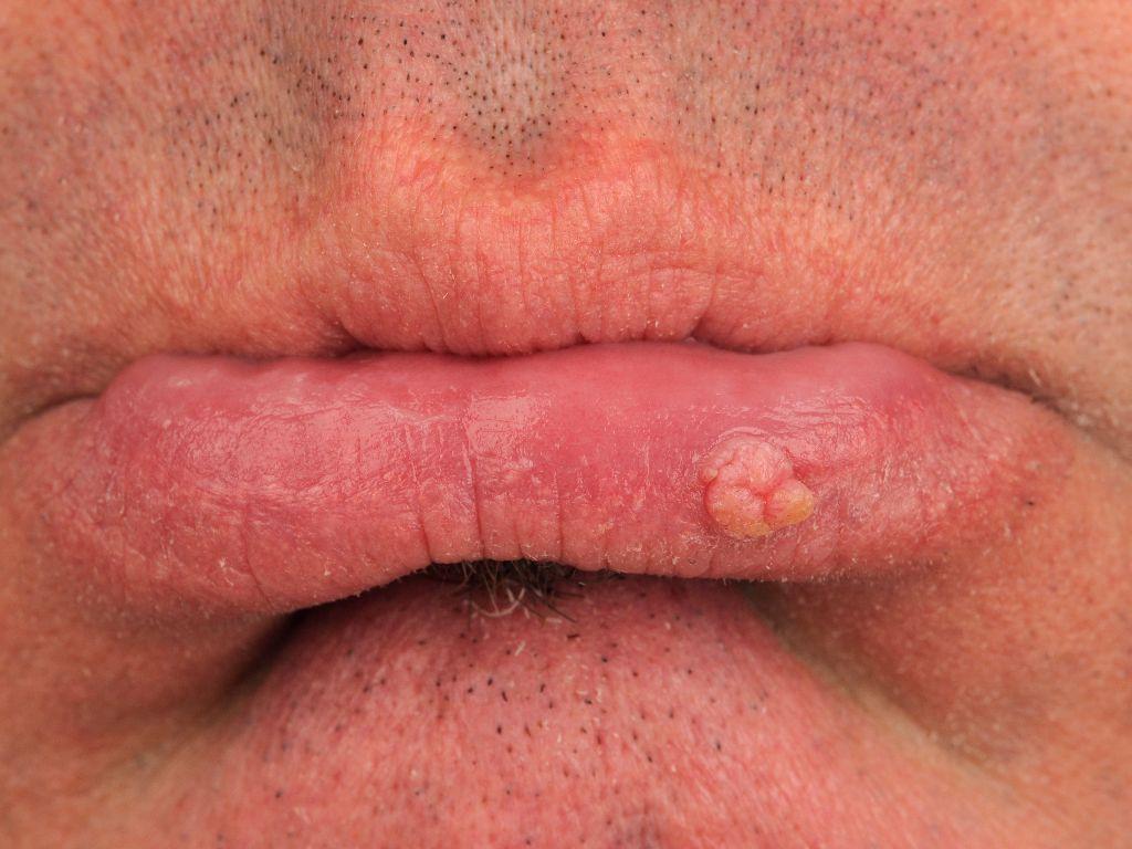 hpv virus wratten handen
