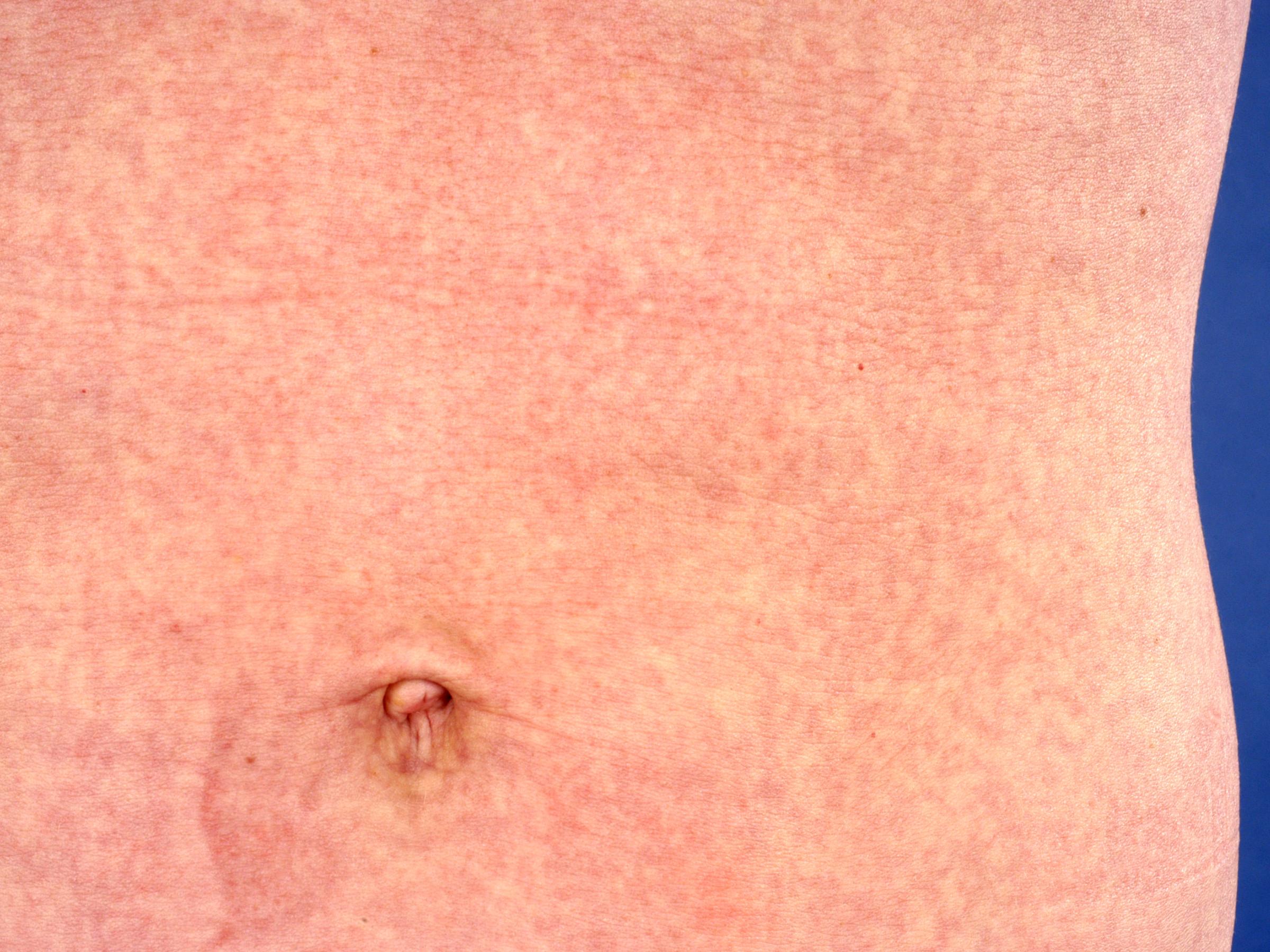 Maculopapuleuze Kinderziekten