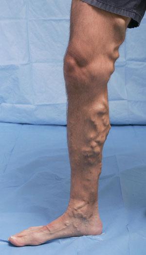 vene reticulare varice de ce te doare picioarele când dormi